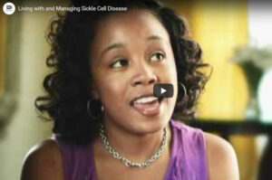Sickle Cell Disease patients' perspective